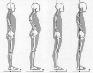 Staande houdingen anatomie Oefentherapie Mensendieck Waves, beach & health center door Cathy Samé Lottin